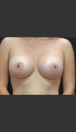 After Photo for Breast Augmentation Case #1 - Gallaher Plastic Surgery & Spa MD - Prejuvenation