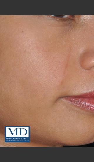 After Photo for Melasma Face Treatment 116 - Jill S. Waibel, MD - Prejuvenation