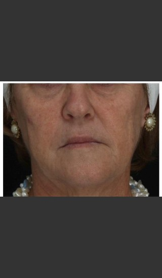Before Photo for Immediate Lifting of Corners of the Mouth after Juvederm Ultra injection (effect is immediately after injection) - Leyda Elizabeth Bowes, M.D. - Prejuvenation