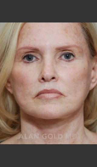 After Photo for Rhytidectomy (Facelift) 1753 - Alan Gold MD - Prejuvenation