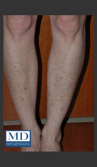 Before Photo for Photorejuvenation Treatment 111 - Jill S. Waibel, MD - Prejuvenation