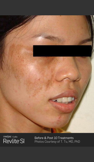 Before Photo for Before and After Revlite SI Series of Treatments for Melasma -  - Prejuvenation