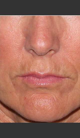After Photo for Reduction of Perioral Lines - Douglas Wu, M.D. - Prejuvenation