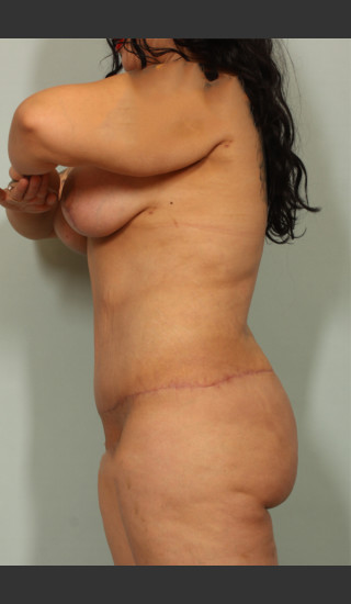 After Photo for Tummy Tuck and Liposuction - El Paso Cosmetic Surgery - Prejuvenation