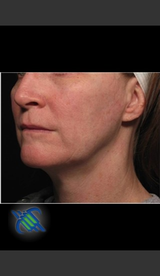 After Photo for Profound Facial Laxity Treatment - Roy G. Geronemus, M.D. - Prejuvenation