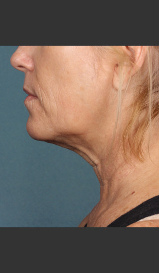 After Photo for Kybella Treatment 54 Year Old Female -  - Prejuvenation