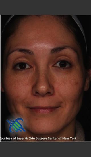 After Photo for Treatment of Melasma - Roy G. Geronemus, M.D. - Prejuvenation