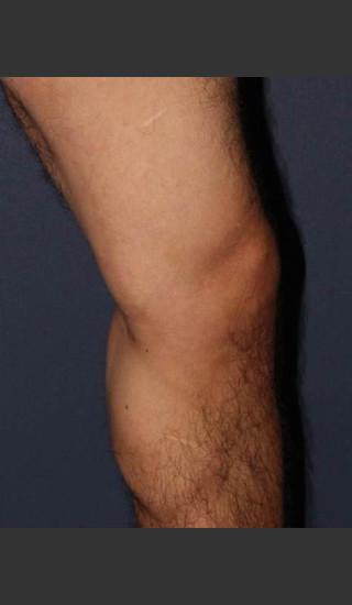 After Photo for Non-surgical Leg Vein Treatment - Mitchel P. Goldman M.D. - Prejuvenation