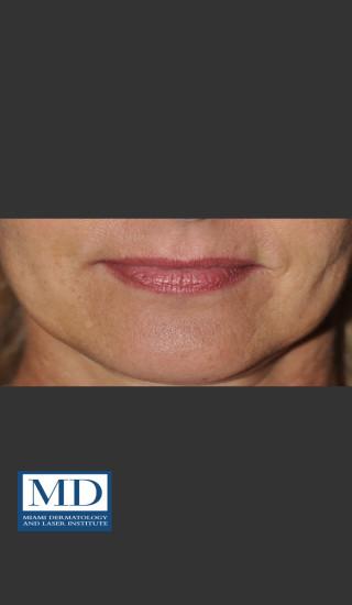 After Photo for Lip Filler 133 - Jill S. Waibel, MD - Prejuvenation
