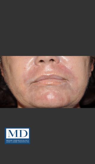 After Photo for Wrinkle Treatment 125 - Jill S. Waibel, MD - Prejuvenation