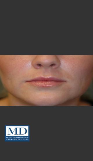 After Photo for Lip Filler 134 - Jill S. Waibel, MD - Prejuvenation