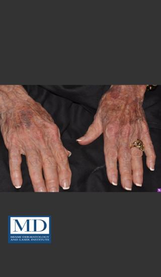 Before Photo for Sun Damaged Hands Treatment 115 - Jill S. Waibel, MD - Prejuvenation