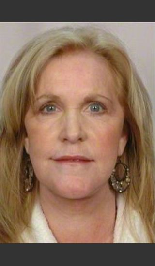 After Photo for 58 Year Old Female: Facelift - R. Scott Yarish MD, FACS - Prejuvenation