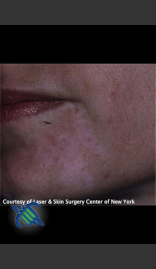 After Photo for Left Chin Treatment of Facial Cafe au Lait - Roy G. Geronemus, M.D. - Prejuvenation