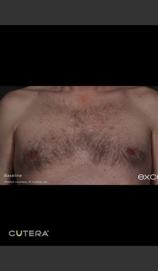 Before Photo for Hair Removal of Chest With Excel HR -  - Prejuvenation