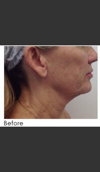 Before Photo for Infini Treatment for Neck Rejuvenation - Annie Chiu, MD - Prejuvenation