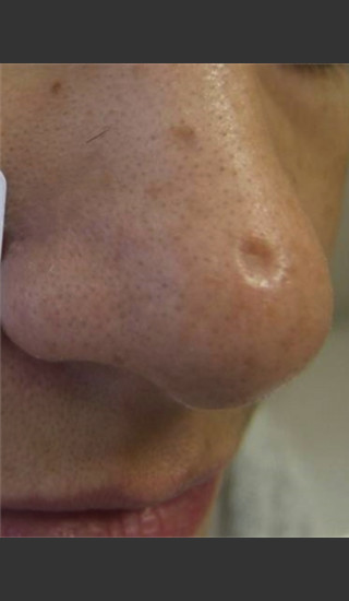 Before Photo for Treatment of Nose Acne Scar -  - Prejuvenation