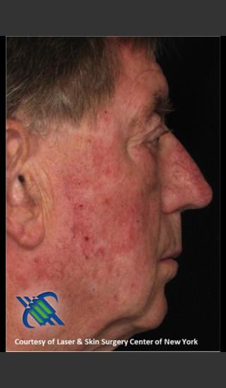 Before Photo for Male Full Face Fraxel Treament - Roy G. Geronemus, M.D. - Prejuvenation