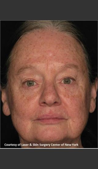 Before Photo for Treatment of Facial Pigmentation -  - Prejuvenation