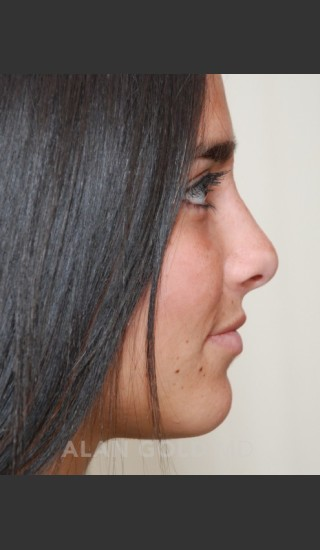 After Photo for Rhinoplasty 1676 Side View - Alan Gold MD - Prejuvenation