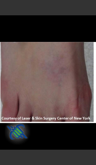 After Photo for Laser Treatment of Foot Tattoo - Roy G. Geronemus, M.D. - Prejuvenation
