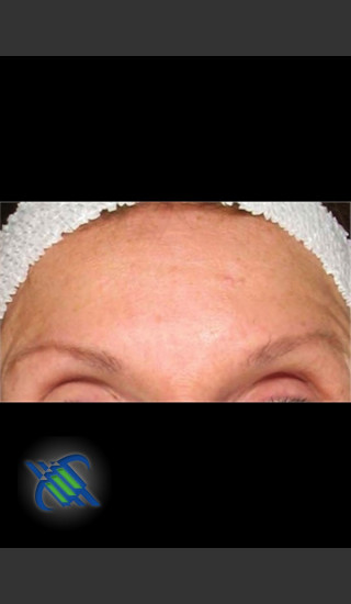 After Photo for Treatment of Fine lines and Wrinkles - Roy G. Geronemus, M.D. - Prejuvenation
