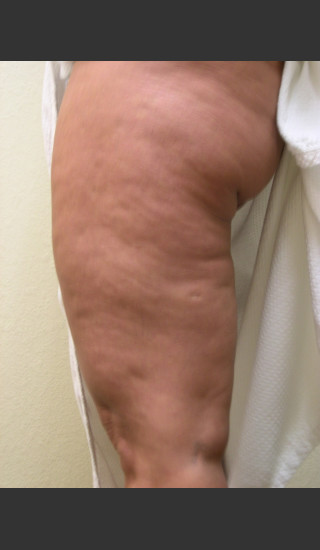 Before Photo for 3DEEP Thigh Cellulite Reduction -  - Prejuvenation