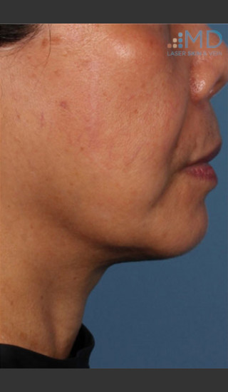 After Photo for Ultherapy Skin Laxity Treatment - Robert Weiss, M.D., F.A.A.D., F.A.C.Ph - Prejuvenation