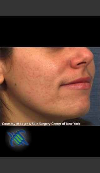 Before Photo for Facial Acne Scaring Treatment - Right Side  - Roy G. Geronemus, M.D. - Prejuvenation