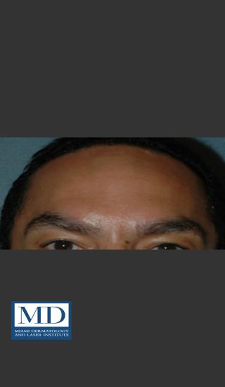 After Photo for Neurotoxin Treatment of Forehead 131 - Jill S. Waibel, MD - Prejuvenation