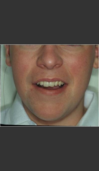 After Photo for Rosacea treated by laser. - Christopher B. Zachary, MD - Prejuvenation