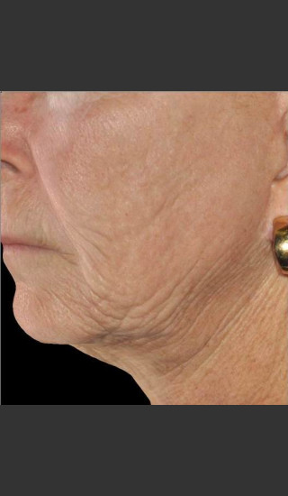 Before Photo for Infini Rhytides and Facial Laxity Treatment -  - Prejuvenation