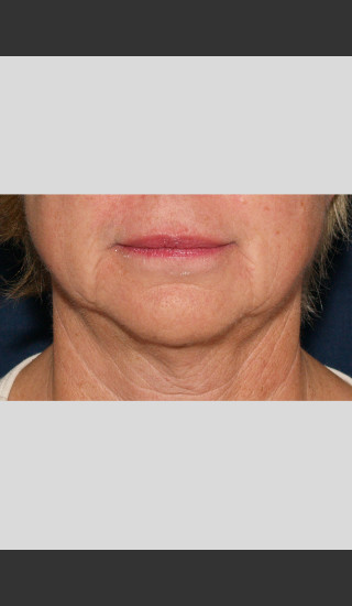 After Photo for Profound Lower Face Lift Treatment -  - Prejuvenation