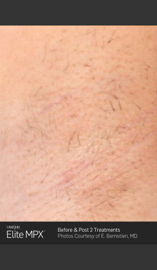 After Photo for Hair Removal of Under Arms with Elite MPX -  - Prejuvenation