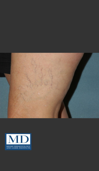 Before Photo for Sclerotherapy Treatment 139 - Jill S. Waibel, MD - Prejuvenation