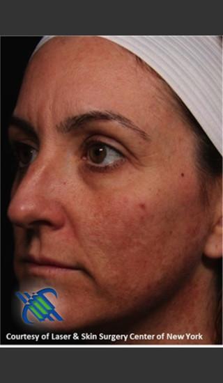 Before Photo for Left Side Full Face Skin Rejuvenation - Roy G. Geronemus, M.D. - Prejuvenation