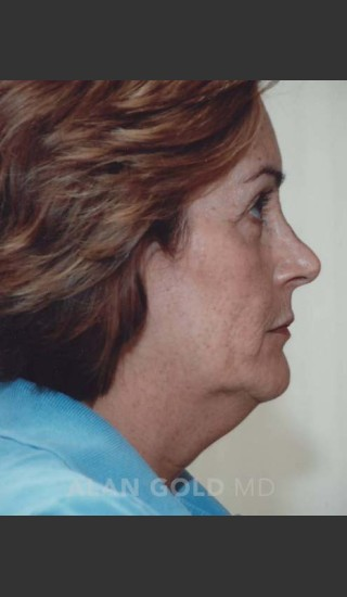 Before Photo for Rhytidectomy (Facelift) 120 Side View - Alan Gold MD - Prejuvenation