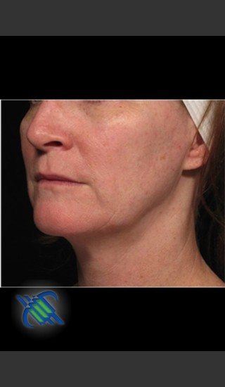 Before Photo for Profound Facial Laxity Treatment - Roy G. Geronemus, M.D. - Prejuvenation