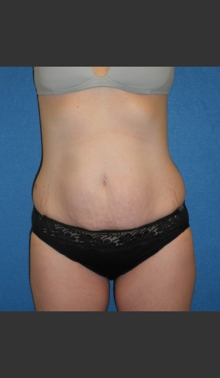 Before Photo for Tummy Tuck Case #1 - South Coast Plastic Surgery - Prejuvenation