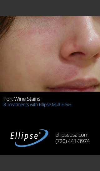 After Photo for Treatment of Port Wine Stain on the Face -  - Prejuvenation
