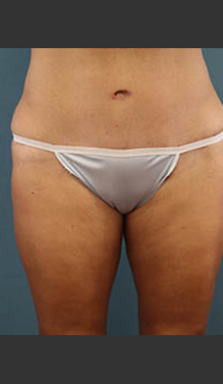 After Photo for Before and After Tummy Tuck - Arthur Handal - Prejuvenation