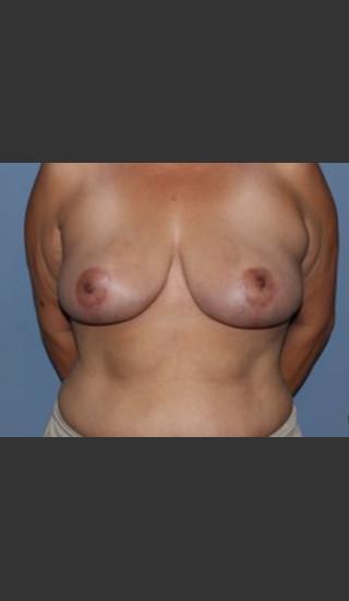 After Photo for Breast Lift Case #1 - Bryan J. Correa, MD - Prejuvenation