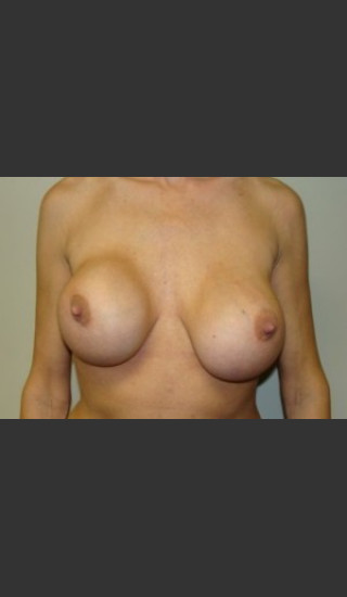 Before Photo for Breast Revision 5654 - Sanjay Grover MD FACS - Prejuvenation