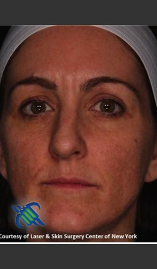 After Photo for Full Face Skin Rejuvenation - Roy G. Geronemus, M.D. - Prejuvenation