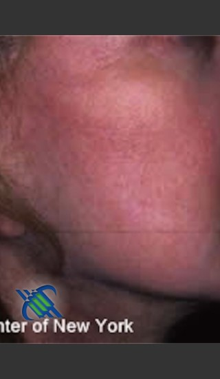 After Photo for Treatment of Right Cheek Pigmentation - Roy G. Geronemus, M.D. - Prejuvenation