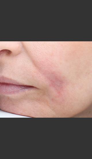After Photo for Traumatic scar  - Paul M. Friedman, M.D. - Prejuvenation