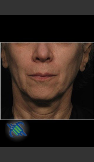 After Photo for Treatment of Facial Laxity with Profound - Roy G. Geronemus, M.D. - Prejuvenation