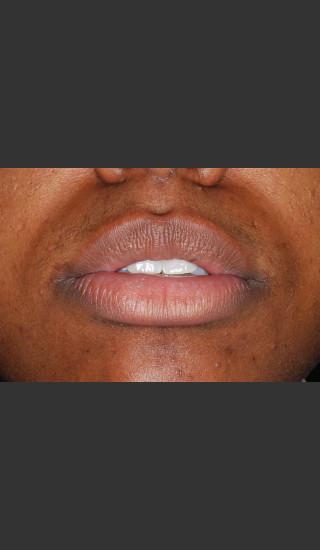 Before Photo for Treatment of Lips - Roy G. Geronemus, M.D. - Prejuvenation