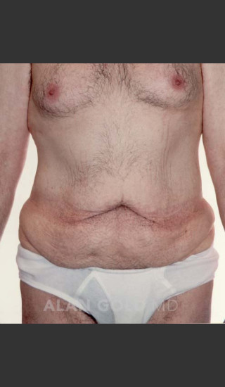 Before Photo for Abdominoplasty 320 - Alan Gold MD - Prejuvenation