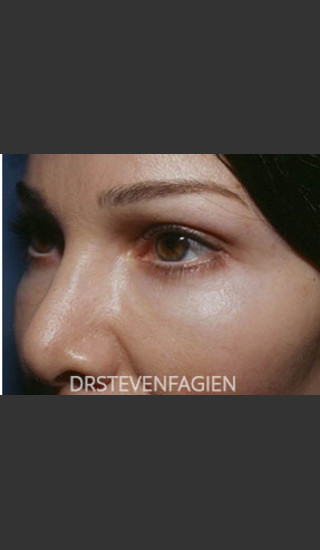 After Photo for Periorbital Rejuvenation - Patient 7 - Steven Fagien, MD - Prejuvenation